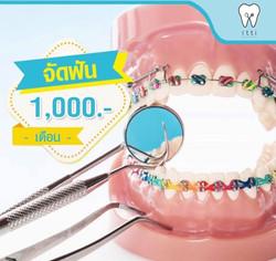 จัดฟัน 1000 บาท ต่อเดือน