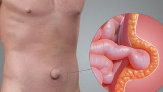Já ouviu falar em Hérnia?É a cirurgia abdominal mais realizada no mundo.