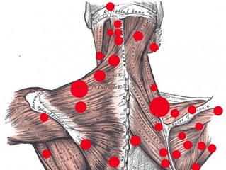How we do Trigger Point Therapy – This is How (and Why) We Do It