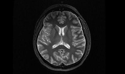 MRIa.jpg