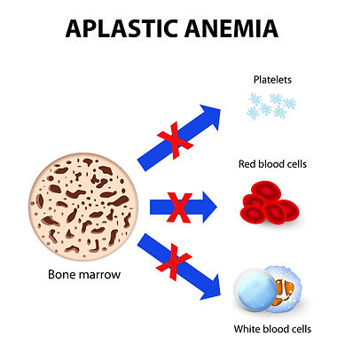 NLM - aplastic-anemia.jpeg