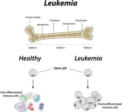 NLM - abnormal-blood-cell-development-in