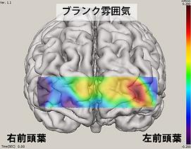 ブランク雰囲気/2-Back脳血液量画像.png