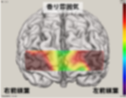 香り雰囲気/2-Back脳血液量画像.png