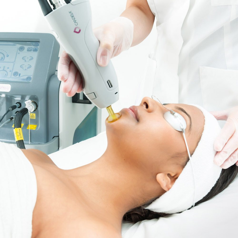 Small Area,PKG of 8 Treatments (LHR)