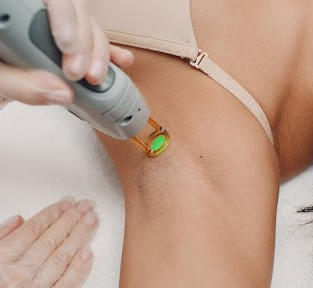 Multiple Area Laser Hair Removal(LHR)