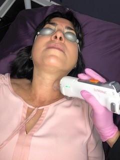 Laser Neck  Rejuvenation