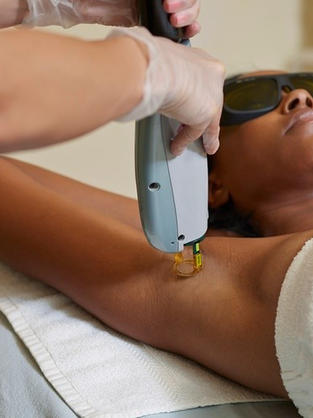 Under Arms Laser Hair Removal(LHR)