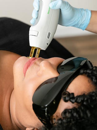 Laser Hair Removal Chin(LHR)