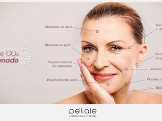 Laser de CO2 Fracionado rejuvenesce a pele, remove cicatrizes de acne e estrias, com resultados visí