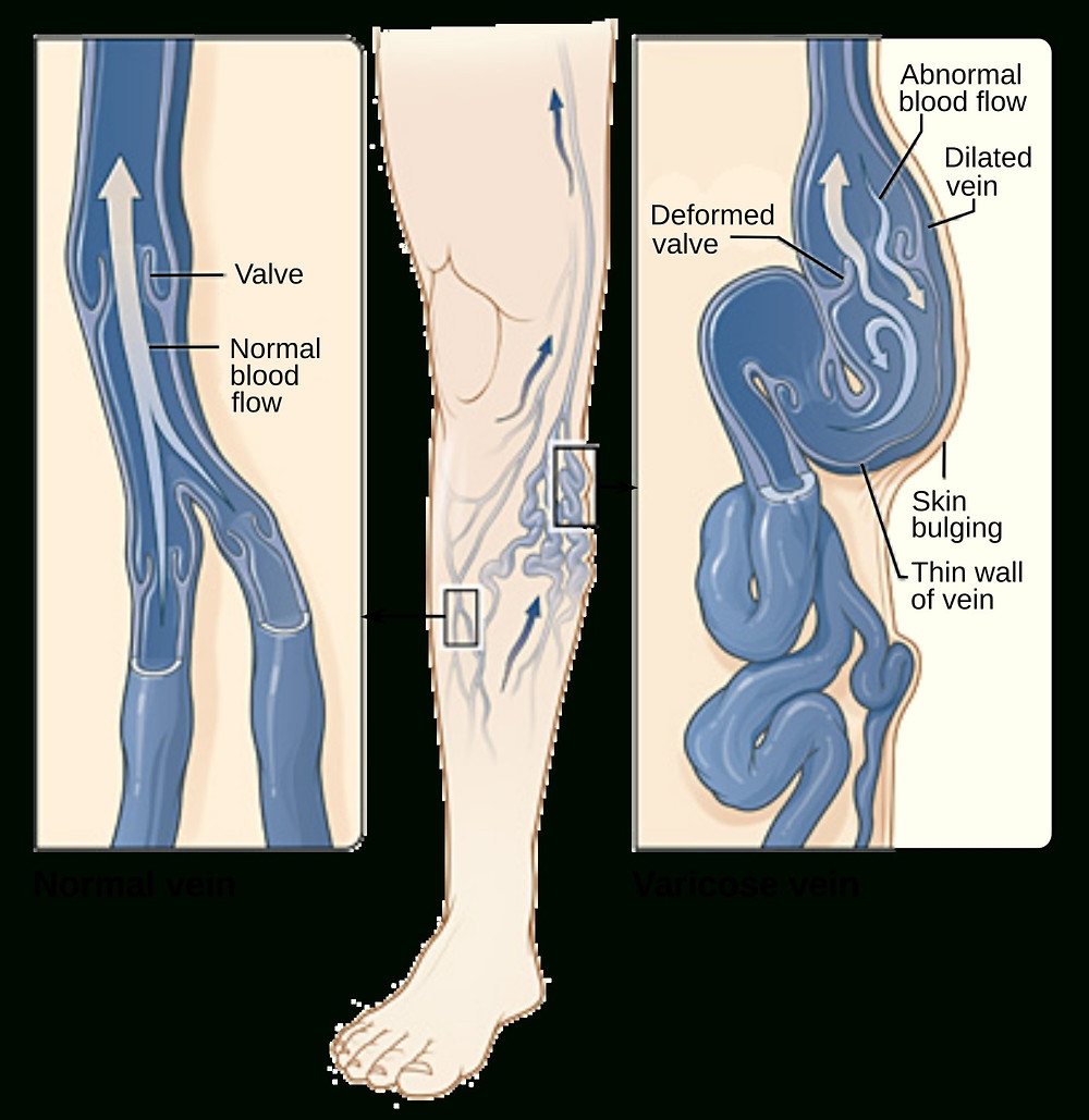 Varicose Veins Treatment and Procedures