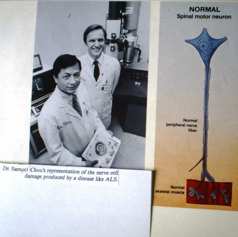 Learned about ALS in patholgy lab at Cleveland Clinic in 1988