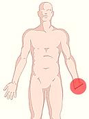 Amputação parcial da mão