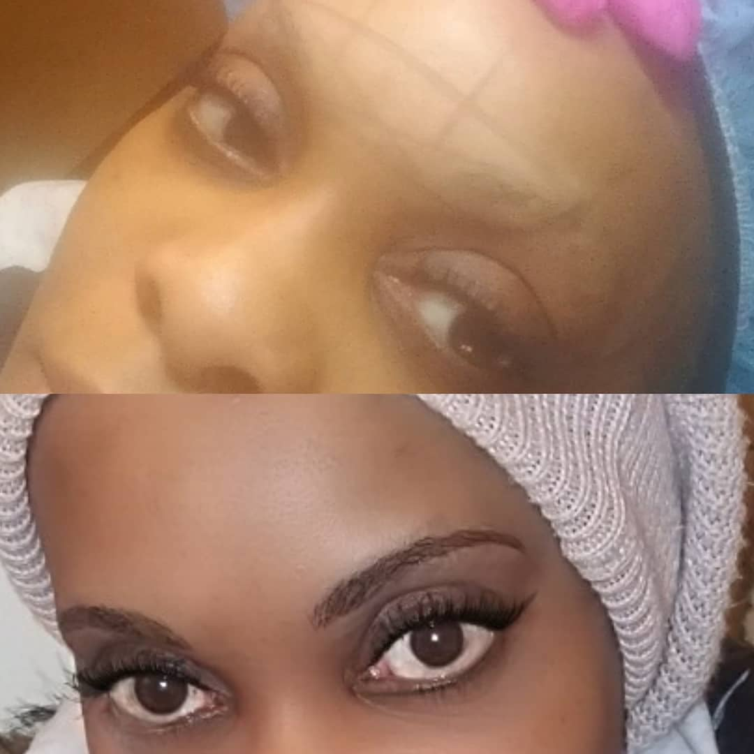 microblading hairless brows