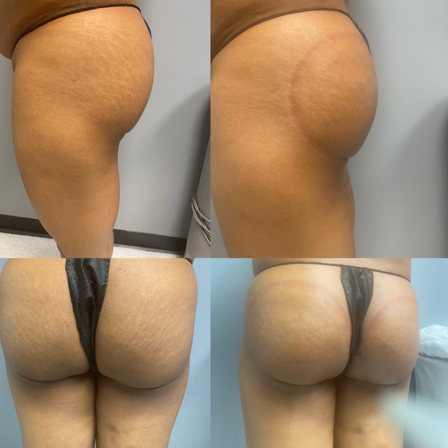 Butt lift w/wood therapy