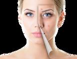 acne pimple.png