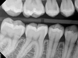 Posnetek zobnih kron