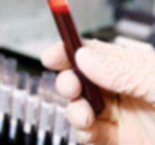 בדיקת סוג דם