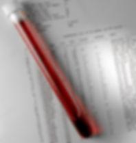 בדיקות דם באופן פרטי,בדיקות דם עד הבית , בדיקות דם פרטיות