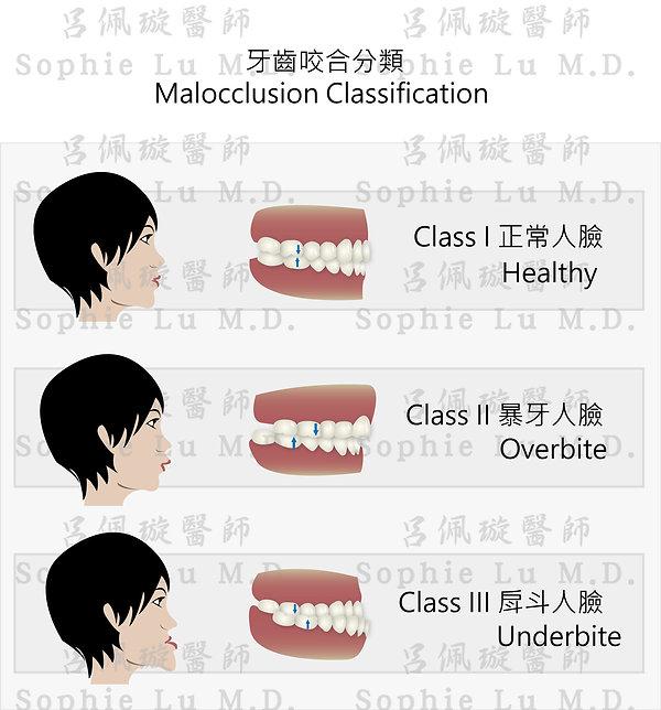 呂佩璇醫師牙齒咬合.jpg
