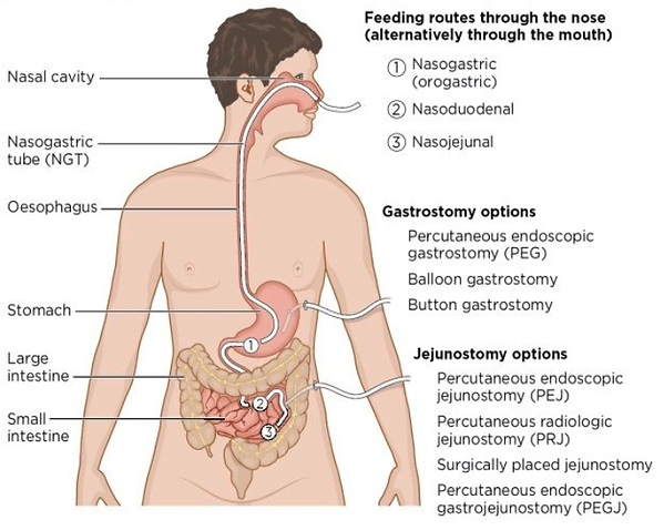 Enteral access examples.png