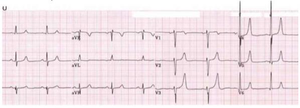 Hyperkalaemia ECG.png