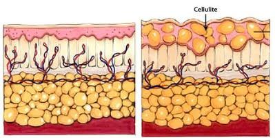 How do I get rid of cellulite?