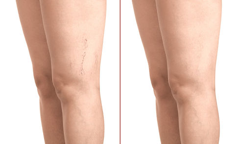 Treatment%2520of%2520varicose%2520before