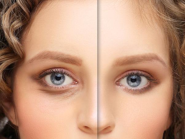 Eyelid surgery_Blepharoplasty,plastic su