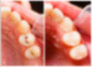 dental filling hawkins holly lake ranch tx