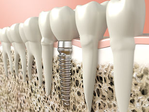 dental implants hawkins holly lake ranch tx