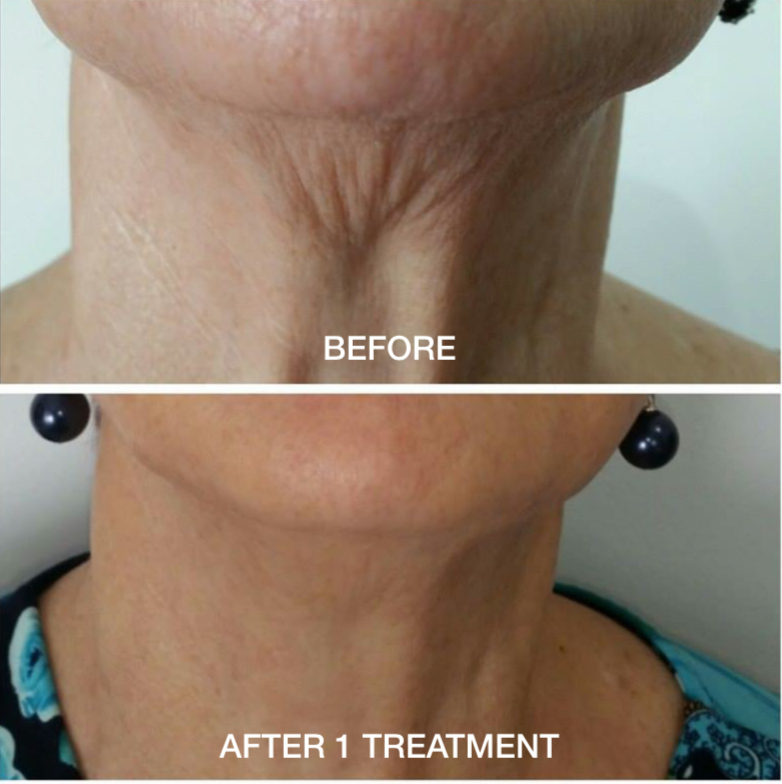 Before and After Neck Lift