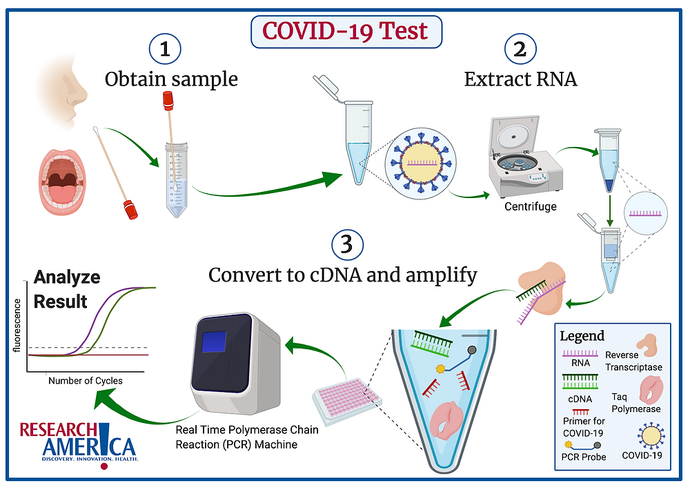 """The COVID-19 test starts by taking a sample from the patient's nose or mouth. Samples are taken from these locations because they are easily accessible and are known to contain the virus.   The next step is to isolate RNA (pink notched line) from the patient sample. RNA is isolated because COVID-19 is an RNA based virus.   RNA extraction is a common laboratory procedure that can be performed with commercially available kits containing the appropriate """"recipe"""" to separate RNA from the rest of the components in the sample.   A centrifuge is used to separate materials by their densities and plays an important role in the RNA extraction phase.  Once the RNA is extracted, it is converted into complementary DNA (cDNA) (green notched lines) via an enzyme called reverse transcriptase (peach-colored protein).   The RNA must be converted into cDNA because the final step of the test can only be performed on DNA. The cDNA is now combined with primers specific for COVID-19 (red notched line), a special enzyme called Taq polymerase (pink protein), and a special fluorescent probe (blue line with yellow and gray endings). The design of these primers enables us to specifically test for COVID-19 and they rely upon information from the sequence of the COVID-19 genome. Taq polymerase and the fluorescent probe are standard components for this test (the rapid test uses the same principle but a colorimetric rather than fluorescent probe).  All of these components are loaded into a plate and run in a Real Time  Polymerase Chain Reaction (PCR) machine. Real Time PCR is a standard laboratory technique that amplifies a region of cDNA between the two primers. Since these primers are specific to COVID-19, the Real Time PCR test will not amplify any cDNA if the original patient sample did not contain COVID-19 RNA. If the patient sample did contain COVID-19 RNA, the amplification of the cDNA will eventually reach a level that is detected by the Real Time PCR machine using the fluorescent probe.  """