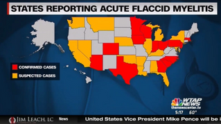 CDC Confirms 62 Cases of Post-Polio or Acute Flaccid Myelitis illness!