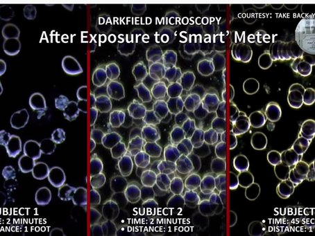 """What Does """"Corona Blood"""" Look Like After Exposure to Radiation Poisoning (EMF) from a""""Smart Meter""""?"""