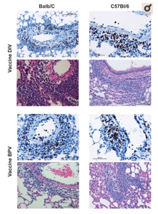 Representative photomicrographs of lung tissue two days after challenge of Balb/c and C57BL/6 mice that had previously been given a SARS-CoV vaccine. Lung sections were separately stained with H&E (pink and blue micrographs) or the immunohistochemical stain for eosinophil major basic protein (blue and brown micrographs). Balb/c mice lung sections are in the left column and C57BL/6 are in the right column; doubly inactivated whole virus vaccine is in the upper four panels and those from mice given the β propiolactone inactivated whole virus vaccine are in the lower four panels. Pathologic changes observed (inflammatory infiltrates) are similar in Balb/c and C57BL/6 and eosinophils are prominent in both groups.