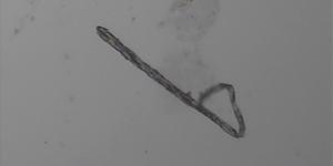 [La figure 2c est une image de fraction aqueuse de 0,5 ml d'un échantillon de vaccin Pfizer vue sous microscopie à contraste pHase à 1200x, montrant un ruban d'oxyde de graphène.  Dr Robert O. Young, 11 septembre 2021[2][9][73]]
