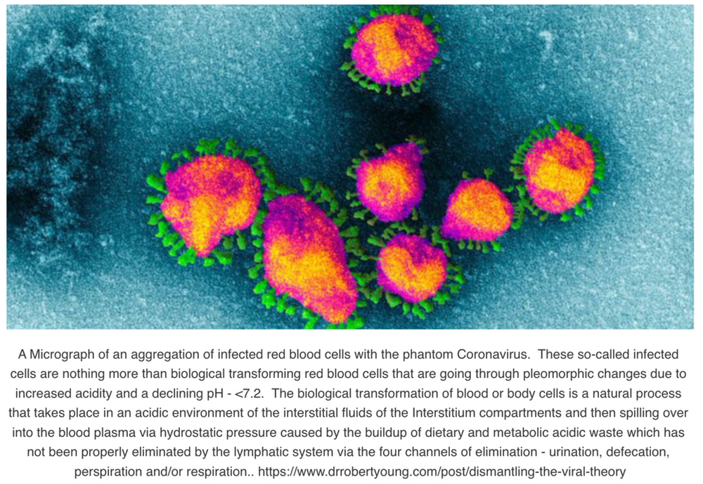 Dismantling The Viral Theory