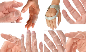 6 white hands wearing plastic peach ring splints.  1 white hand wearing an opaque-white gel sleeve on the poitner finger, and 1 white hand wearing a gray splint for ulnar deviation.