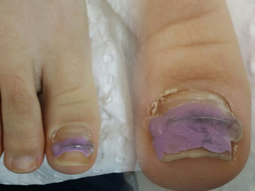 MEDICAL PEDICURE – WHAT IS IT ?