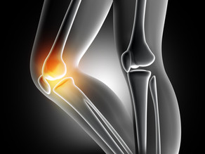 Knee Joint injury and treatment at Team Physio