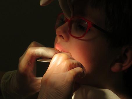 歯の矯正には平均どれくらいの期間かかるの?子供と大人に違いはある?
