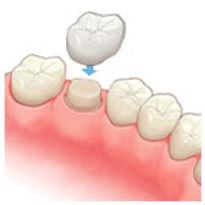 コーヌス義歯をしている歯のイラスト