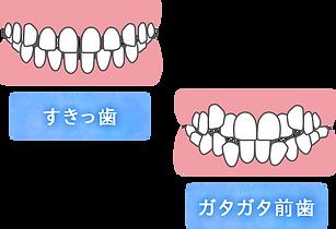 すきっ歯とガタガタ前歯