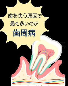 歯を失う原因で最も多いのが歯周病