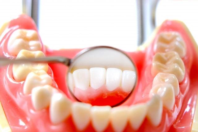 歯茎の違和感