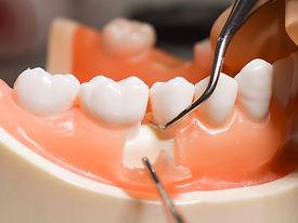 歯の研磨.jpeg