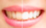 笑顔の口元