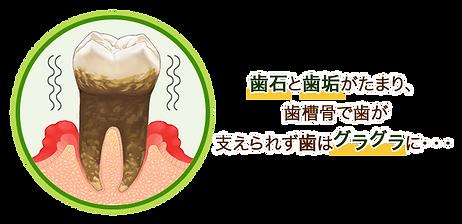 歯石と歯垢がたまり、歯槽骨で歯が支えられずグラグラに