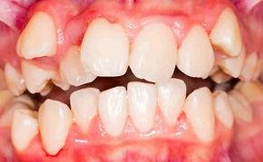 不正咬合の歯